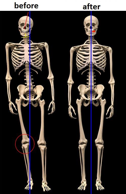 compared skeleton