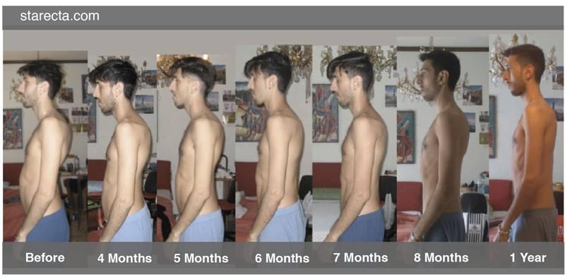 evolution posture starecta