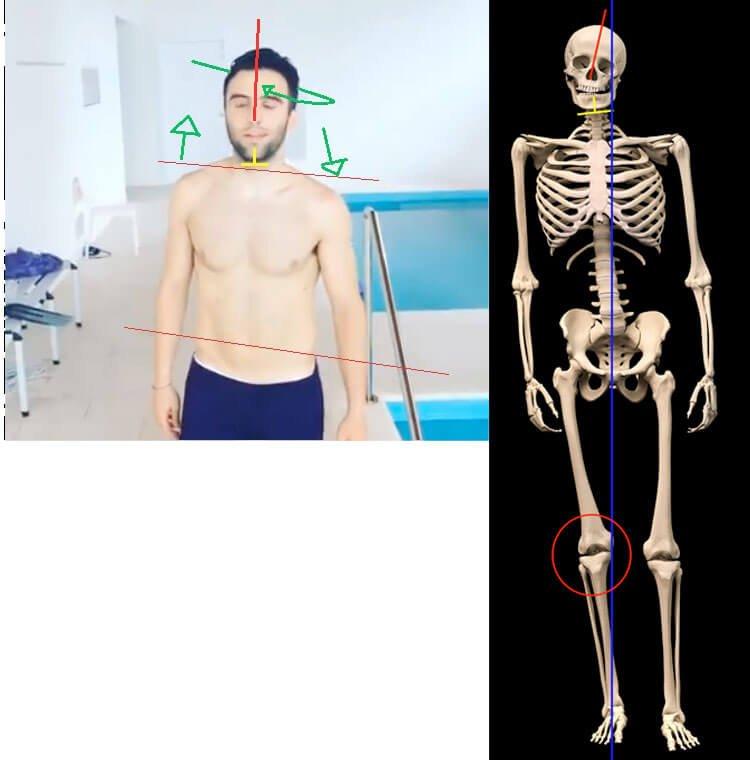 rossi skeleton
