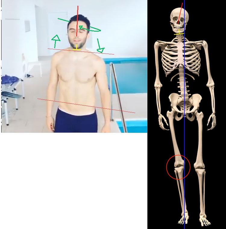 rossi-scheletro-comp