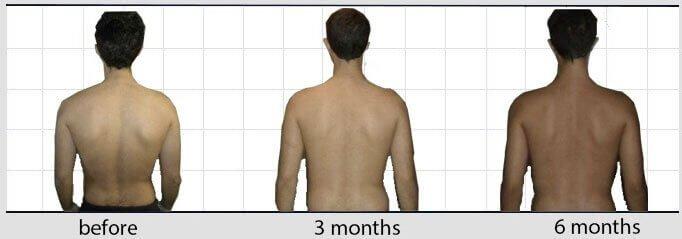 spine scoliosis