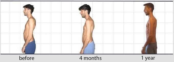 moreno evolution posture
