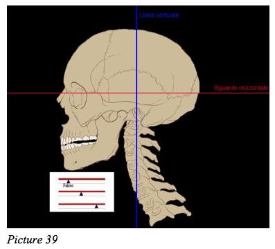 skull dental