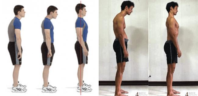 fake posture