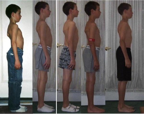 fake-posture-boy