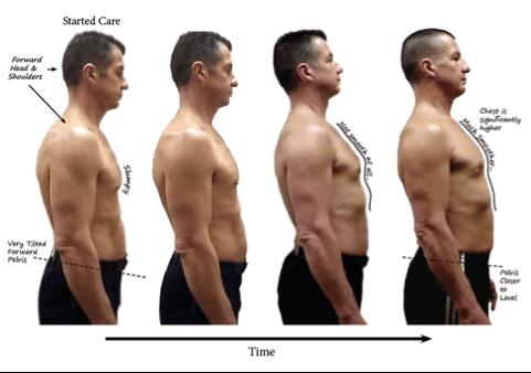 posture chiropractic