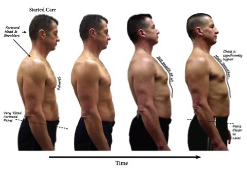 posture-chiropractic