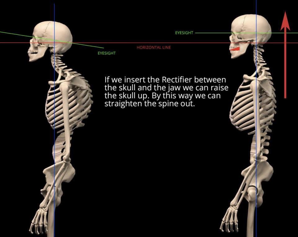 starecta posture mechanism