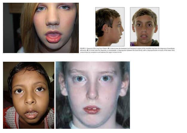 asymmetrical face