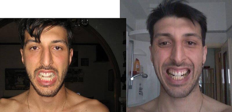 moreno symmetry face