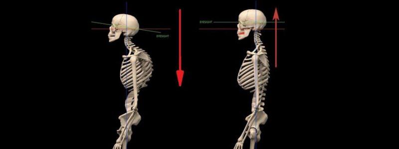 skull neck pain