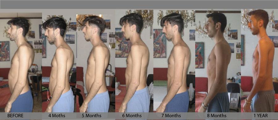 evolution back kyphosis