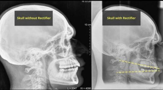 neck pain solution
