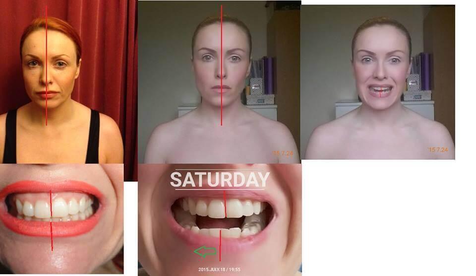 teeth posture