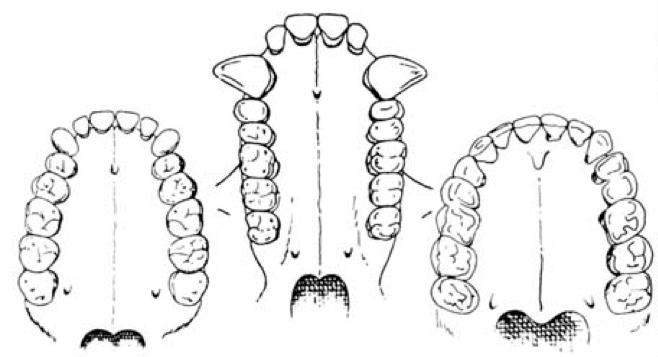 arches teeth