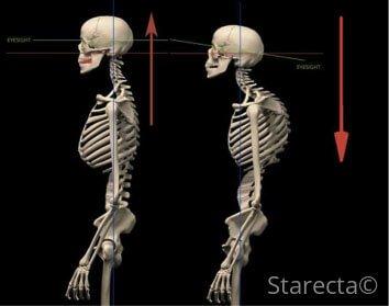 unbalanced body posture