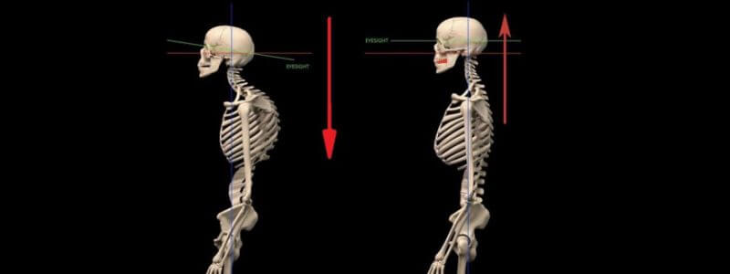 body posture teeth