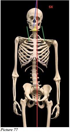 body unbalanced skeleton