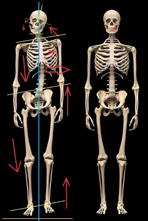messi esqueleto