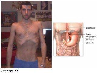moreno organs