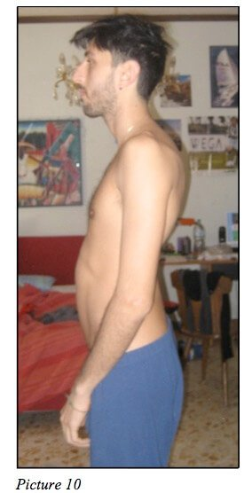 moreno profile 2