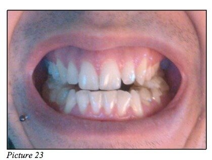 occlusion teeth moreno