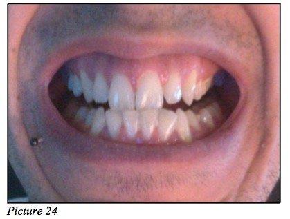 occlusion teeth
