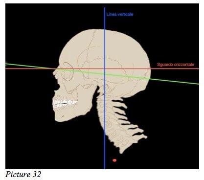 skull eyesight