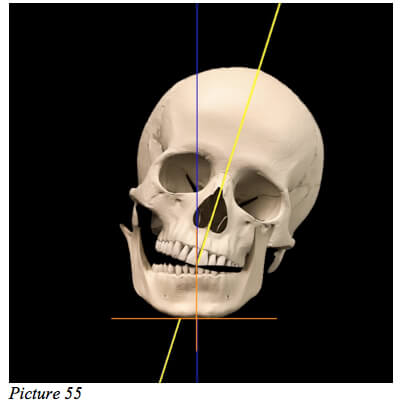 skull misaligned starecta