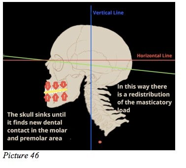 skull occlusion swallow