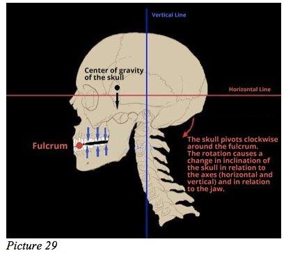 skull starecta