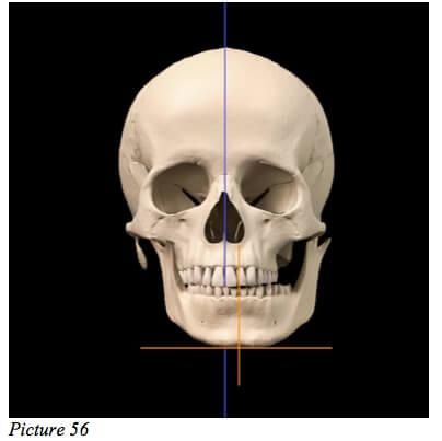 skull starecta misaligned