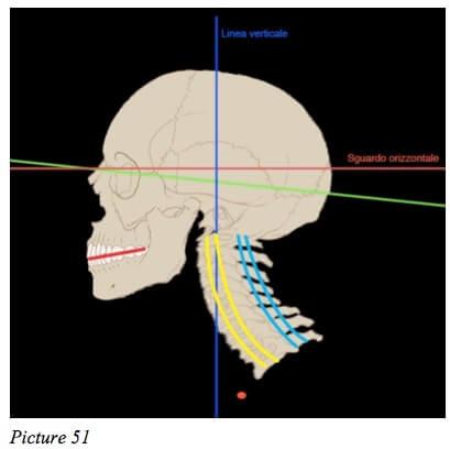 starecta skull
